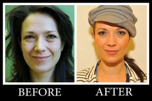 Are Cosmetic surgery Images real