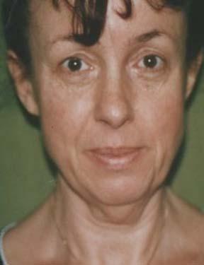 Prague plastic surgery