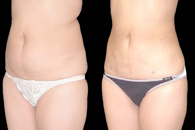 Vaser Liposuction | In Prague