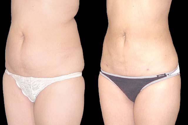 Vaser Liposuction In Prague