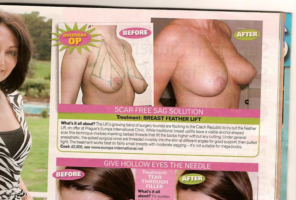 Breast uplift Surgery