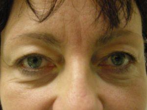 Eye Bag Surgery.