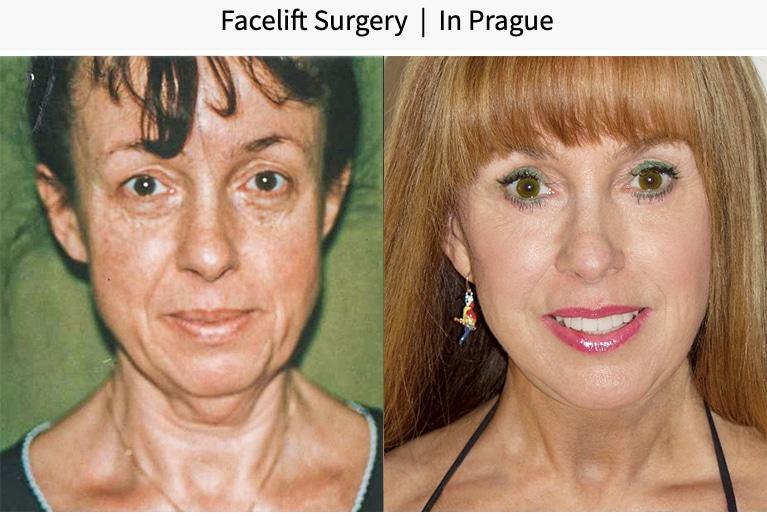 facelift surgery in Prague