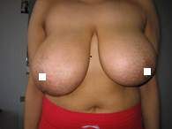 Breast Uplift and Reduction